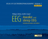 EEG : Awake and Sleep